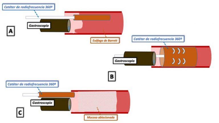 Esquema Ablacion RFA 360