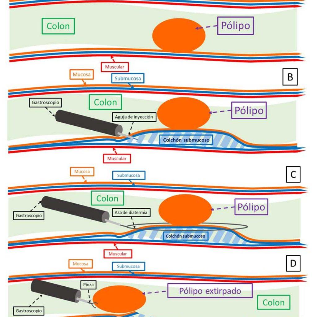Esquema explicativo del procedimiento de RME