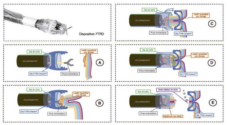 Esquema explicativo del procedimiento de RTME