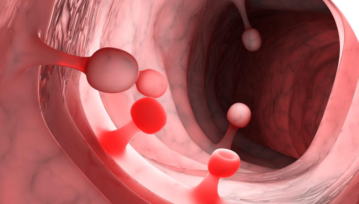 Síntomas y peligros de los pólipos de colon